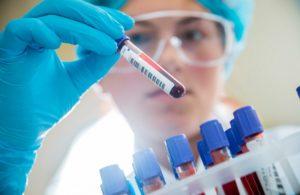 Анализы на антитела при гепатите В