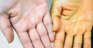 При активном гепатите развивается желтуха