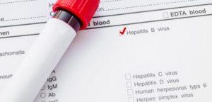 Анализ на гепатит В – это обнаружение в крови HBs-антигена