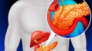 При панкреатите в острой форме препараты противопоказаны