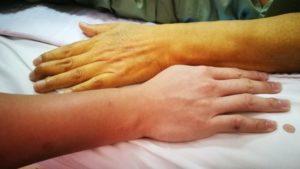 желтушность кожных покровов является показанием к сдаче теста на гепатит