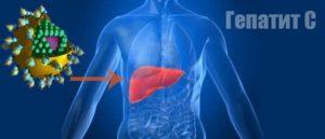 Неактивный гепатит C
