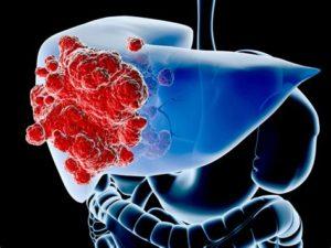 Принцип действия медикамента заключается в восполнении дефицита фосфолипидов клеточной стенки печени