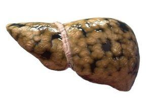 Жировая дистрофия
