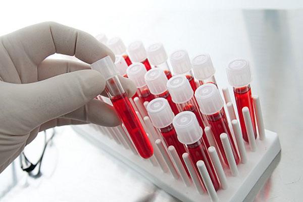 Анализы крови на гепатит - норма, расшифровка результатов, как правильно сдавать