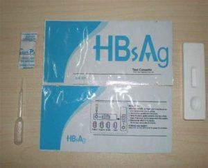 Анализ крови на антиген hbsag
