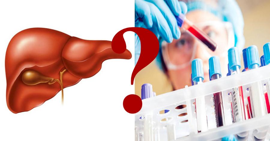 Определить гепатит с по биохимическому анализу крови thumbnail