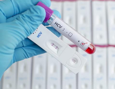 Что делать если ифа на гепатит положительный thumbnail
