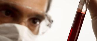 первостепенным диагностическим мероприятием является анализ крови