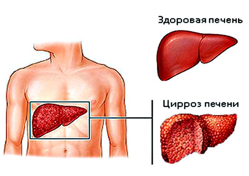 Гепатит переходящий в цирроз