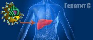 Хронический гепатит с симптомы у женщин