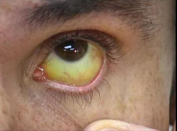 Желтизна глаз при гепатите фото thumbnail