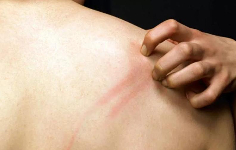 Самой распространенной причиной зуда кожи при беременности является болезнь полиморфный дерматоз беременных пдб.