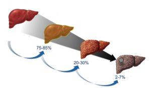 стадии жирового гепатита