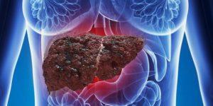 жировой гепатит